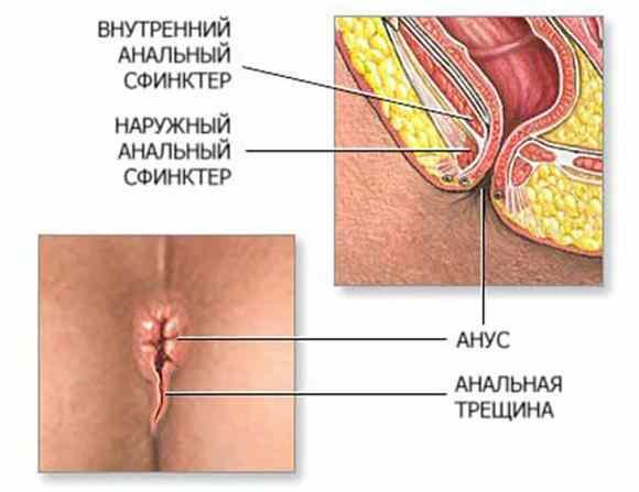 esli-cheshetsja-zadnij-prohod-4